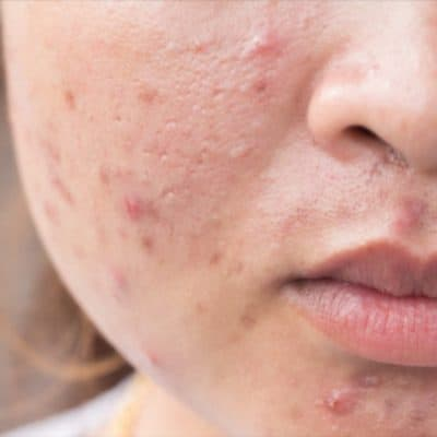 Adult Acne-How Do You Get Rid of It?